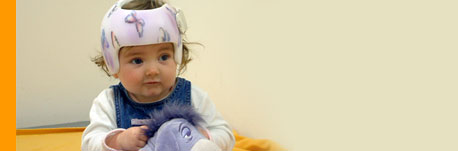 plagiocephaly- London Orthotics